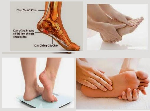 Chữa khỏi đau gót chân hay đau chân bằng đông y