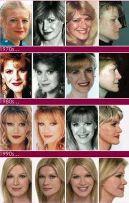 52次整形 Cindy Jackson
