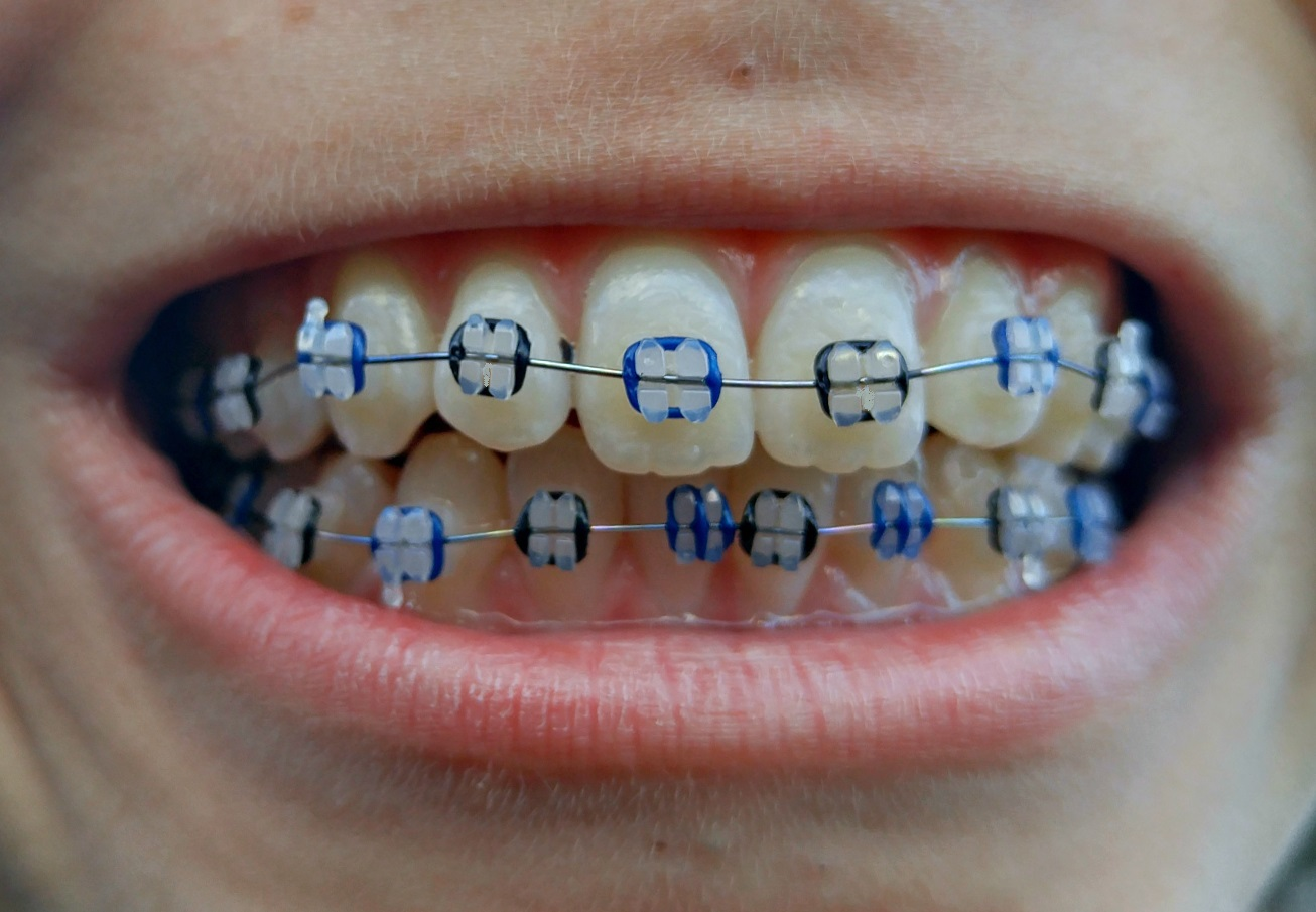 how to put on bands on braces