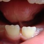 pré-natal odontológico
