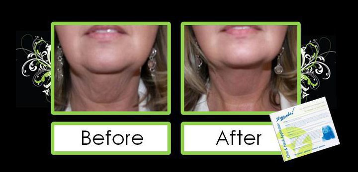 ItWorks Body Wraps Before and After