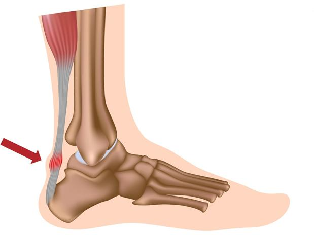 Morning Foot Pain? - I cannot get a diagnosis -