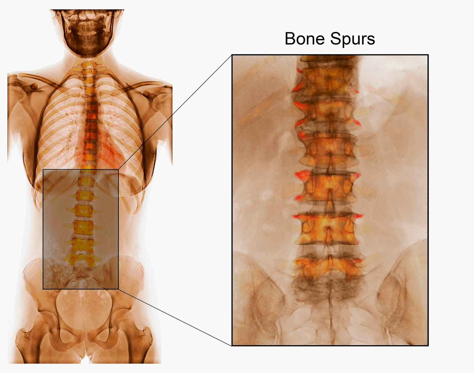 AP Color X-Ray showing Degenerative Disc Disease (DDD) and Bone Spurs