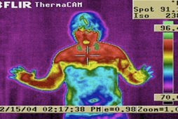 Thermal image showing autonomic dysfunction following ETS surgery