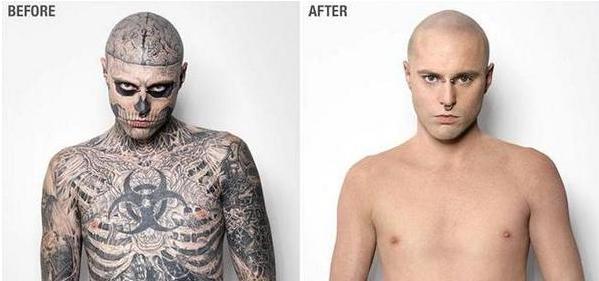Vida de mulher aos 40 zombie boy retira tatuagens para for Dermablend tattoo cover up video