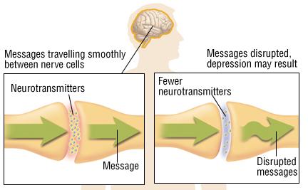 kill depression sign of severe depressionsign of severe depression