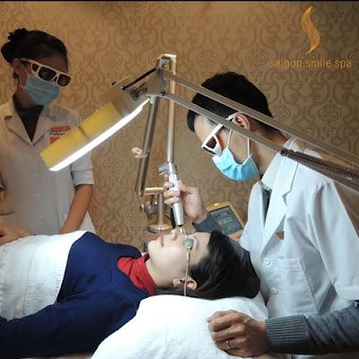 tri-nam-tan-nhang-Laser-Revlite-3