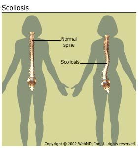 Nursing Care Plan for Scoliosis Nursing Diagnosis for Scoliosis