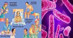 Obat Untuk Penyakit TBC