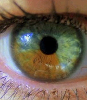 how to change eye color permanently eye color surgery