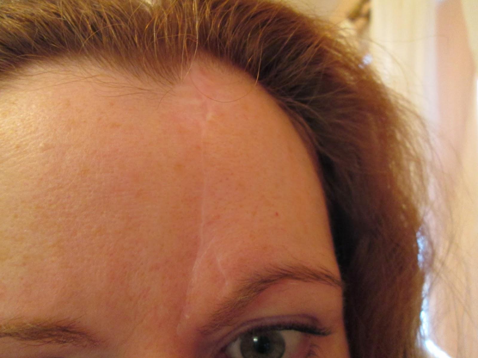 cicatrice au front