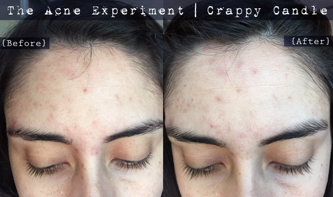 Before & After Rosehip Seed Oil :: The Acne Experiment