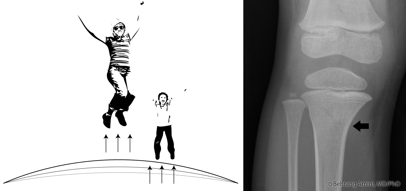 trampoline fracture refers to a transverse or buckle (torus) fracture