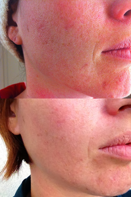 my three months results with Nerium AD age dying treatment