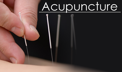 Acupuncture History, Treatment, Benefits, Side Effects, Points