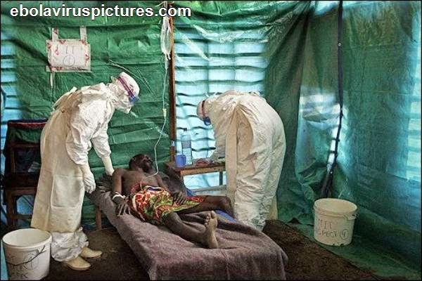 No Ebola Patient should be resting on flat beds. They need to be raised 15cm at head end