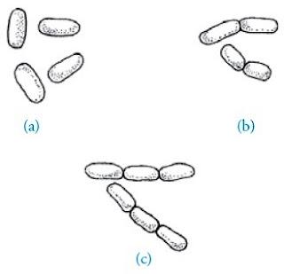 Berbagai bentuk bakteri basil Monobasil Diplobasil Streptobasil