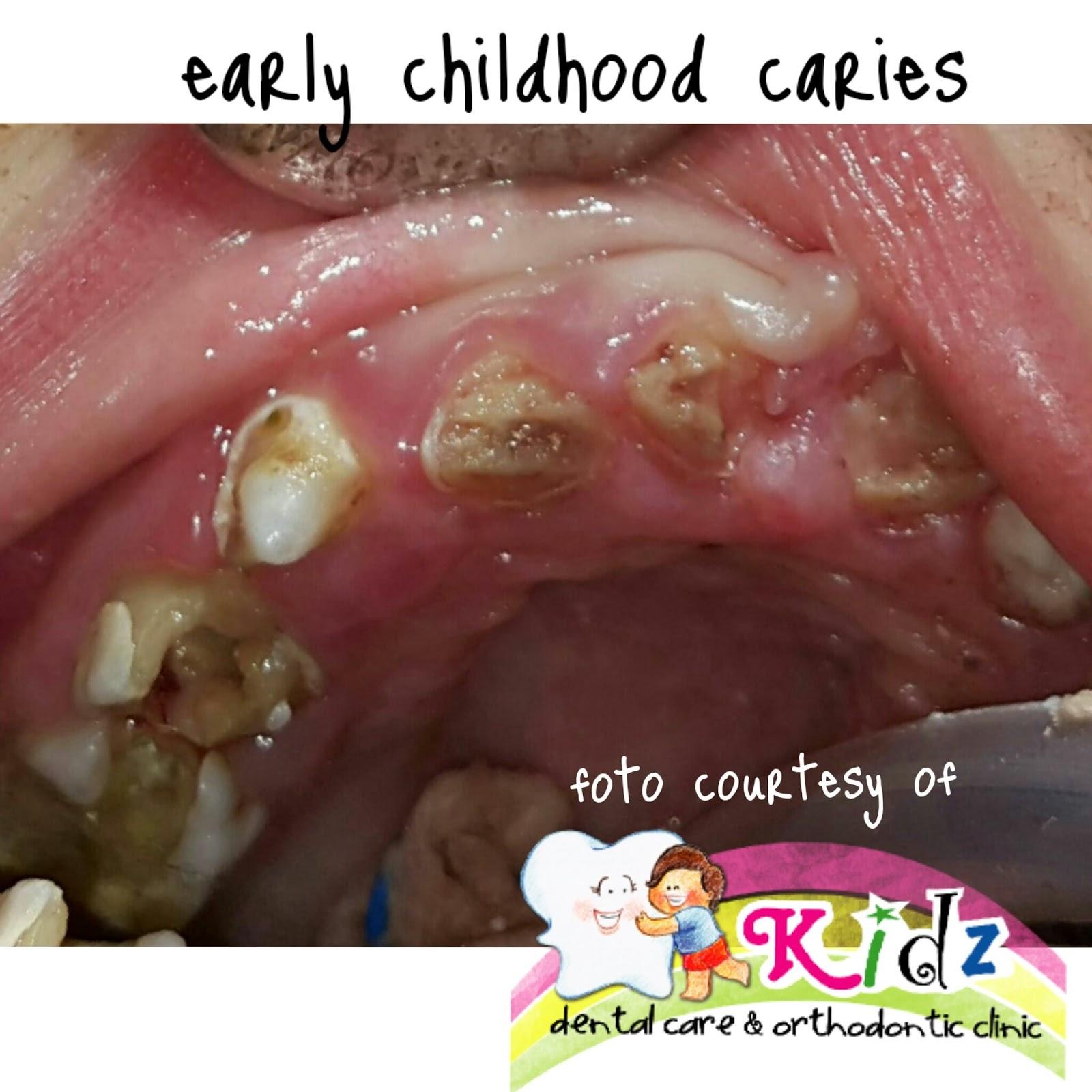 Pengobatan Gigi Anak Down Syndrome Kidz Dental Care