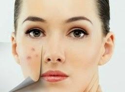 Cara Menghilangkan Flek di Wajah secara alami dan cepat