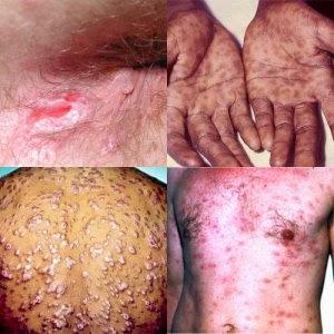 gejala terkena sifilis