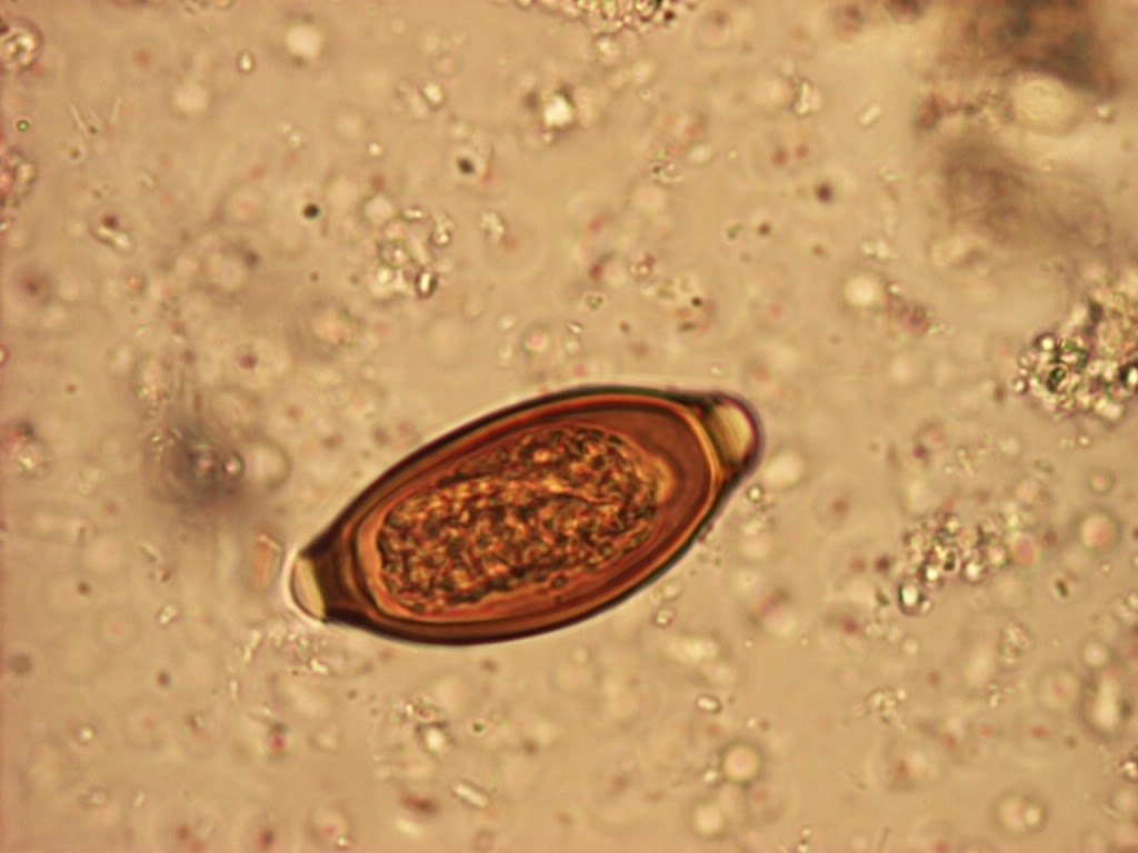 intestinal papers parasite research Health term papers (paper 13889) the free health research paper the doctor has just informed you that you have a tapeworm parasite.