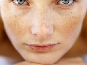 que son las manchas o puntos en la piel