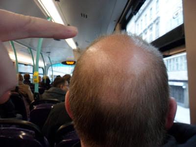 Bald Spot 7