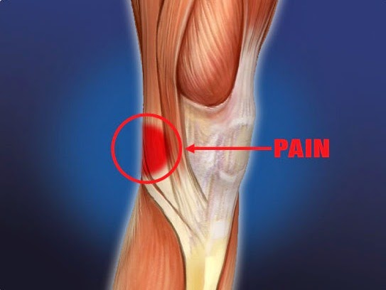 Pain In Leg Behind Knee And How To Treatment