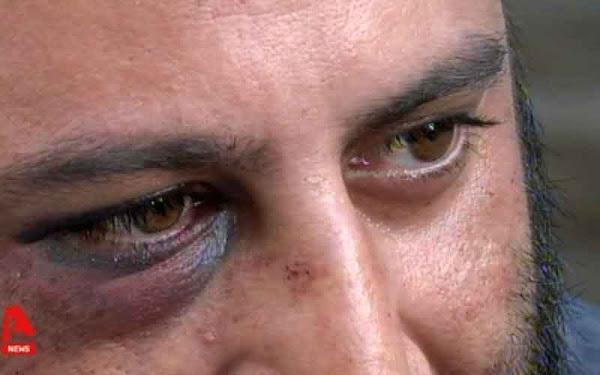 Μαρτυρία θύματος επίθεσης μετά την αντιφασιστική πορεία στο Κερατσίνι: «Με έδειραν με βαριοπούλα και με λήστεψαν» [Βίντεο]