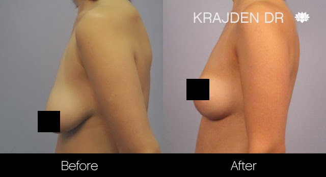 Before and after a breast lift