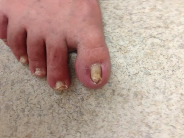 Dr. Pelto\'s Blog: Ingrown Toenails or Bone Spur?