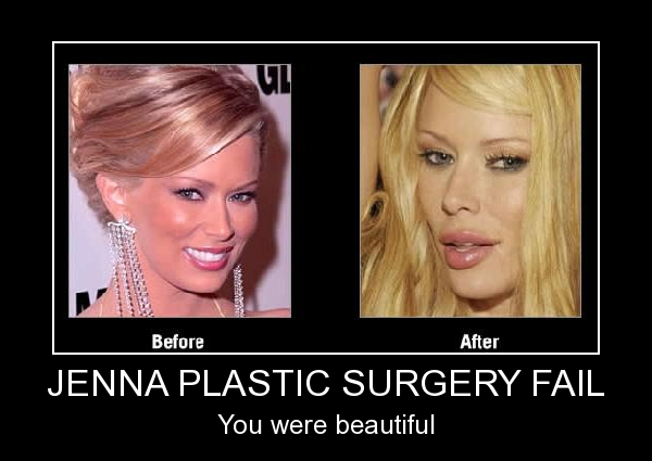Jenna Plastic Surgery Fail