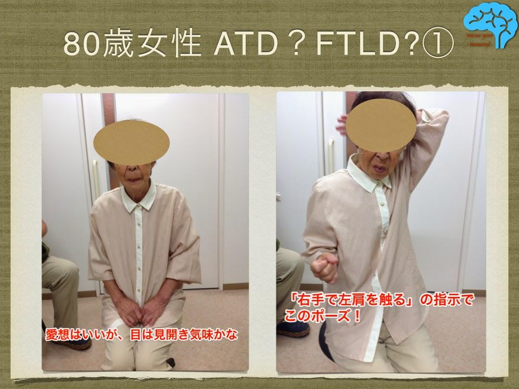 FTLDにおいてよくみられる表情と動作