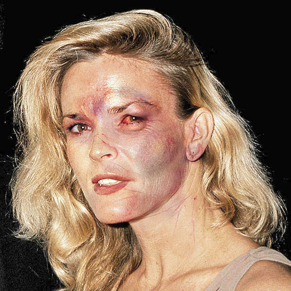 Death Photos Of Nicole Brown Simpson Nicole brown simpson, after a
