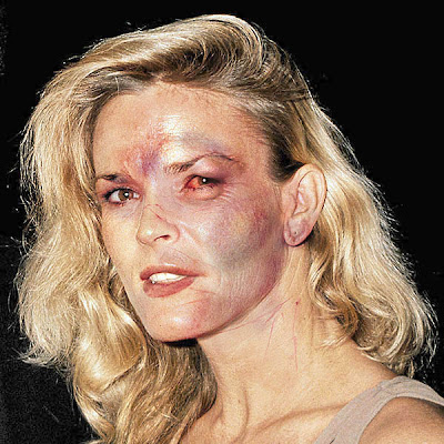 Nicole Brown Simpson, after a non-murder session with her husband