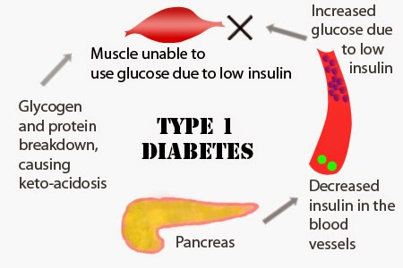 diabetes mellitus type 1 treatment