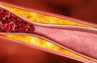 الفحص الدوري للكوليسترول