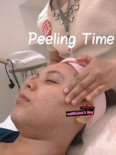 Peeling time