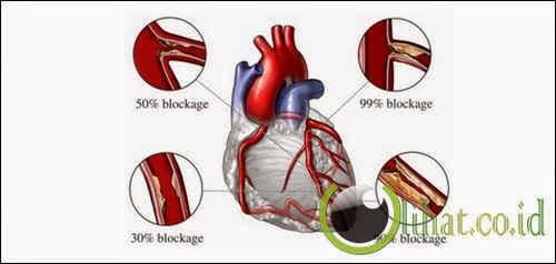 Aritmia dan ruptur jantung (pecahnya otot jantung)