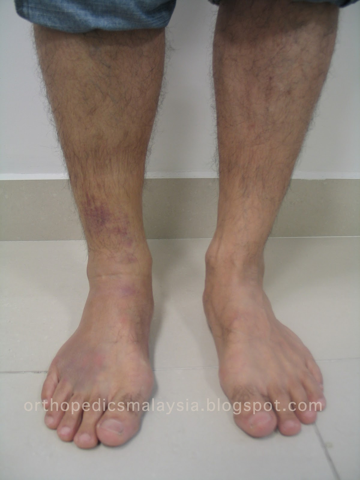 Gastrocnemius Muscle Tear Calf Tear The Orthopedics Malaysia Blog