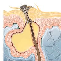 remède naturel acné