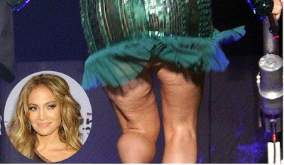 Jennifer Lopez suffers from cellulite