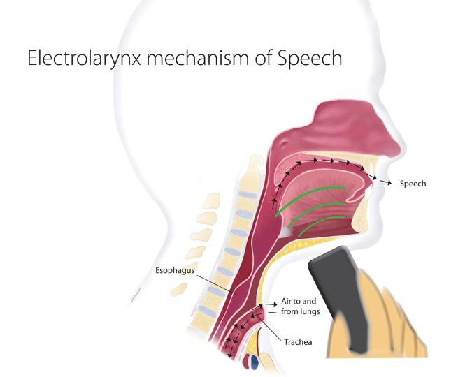 stoma voice machine