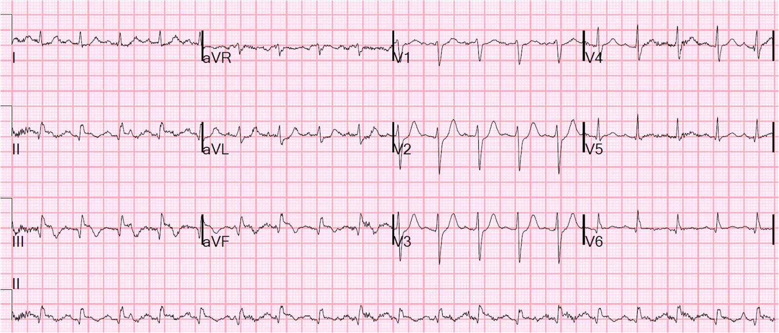 Dr Smith S Ecg Blog Pulmonary Edema Hypertension And