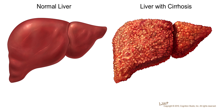 CLICK2CURE: What is Liver Disease? Most Common Liver Disease.