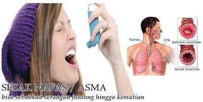 Obat Untuk Penyakit Sesak Nafas Paling Ampuh