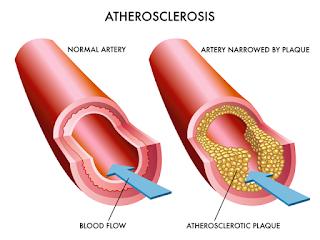 cara mencegah dan mengobati penyakit kolesterol