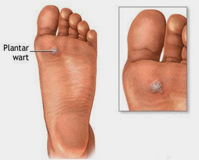 what is a plantar wart caused by