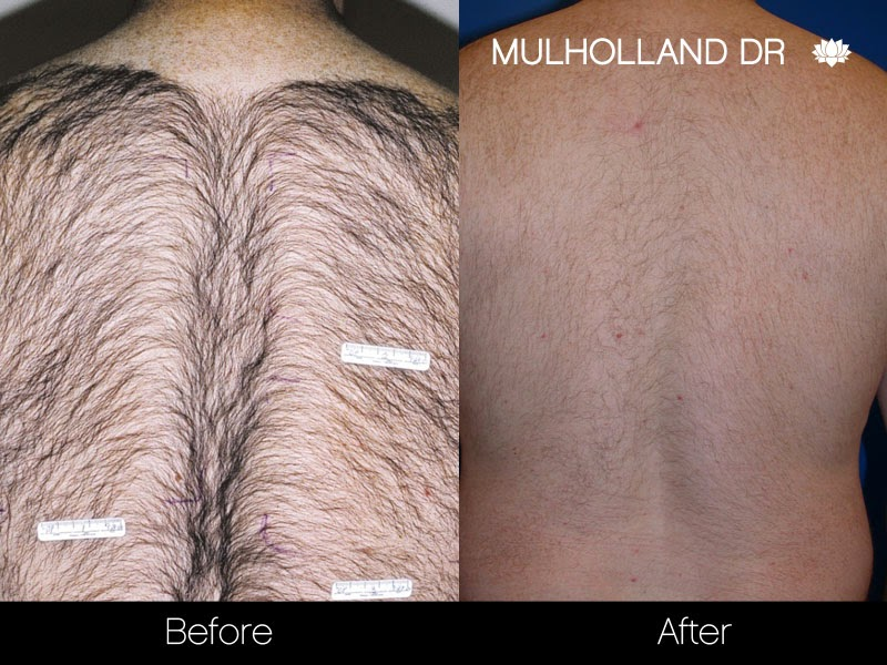 Before and after photo of laser hair removal patient