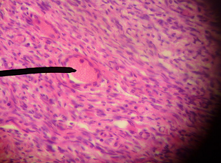 Picture of a Human primordial follicle